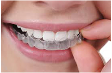Clifton NJ Invisalign Dentist